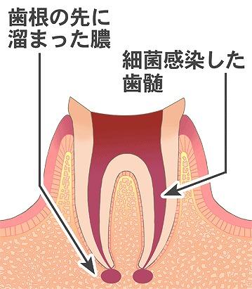 根管治療後に根管内で再感染を起こした場合