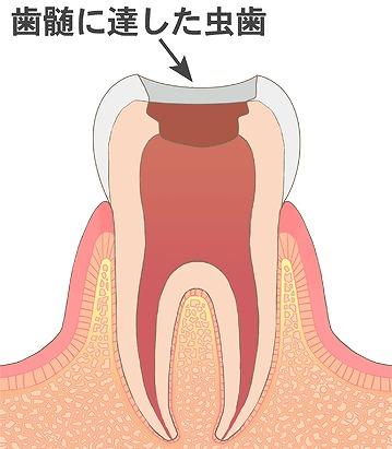 虫歯に侵された歯や歯髄を削る