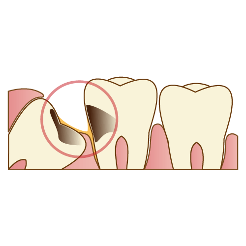 親知らずや親知らずの手前の歯が虫歯になる|神戸市垂水区で親知らずを行う梶歯科医院