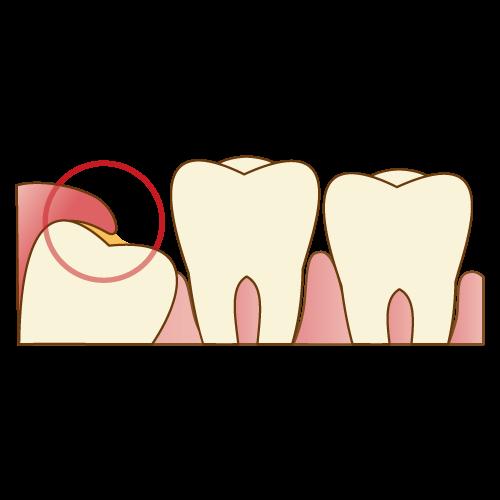 歯周炎のリスクが高まる|神戸市垂水区で親知らずを行う梶歯科医院