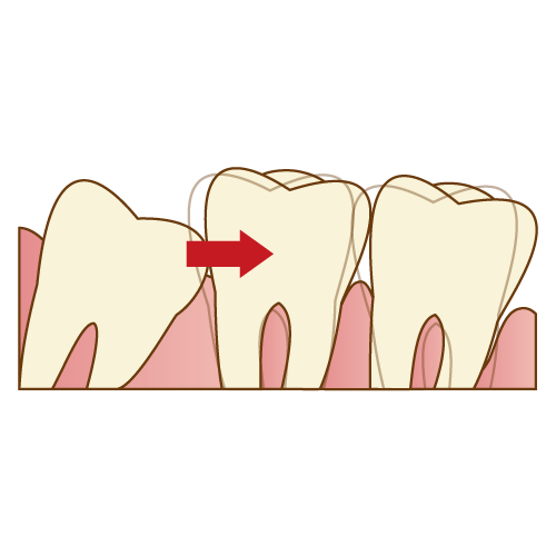 歯並びを乱すことがある|神戸市垂水区で親知らずを行う梶歯科医院